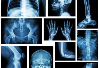 Skelett Basics