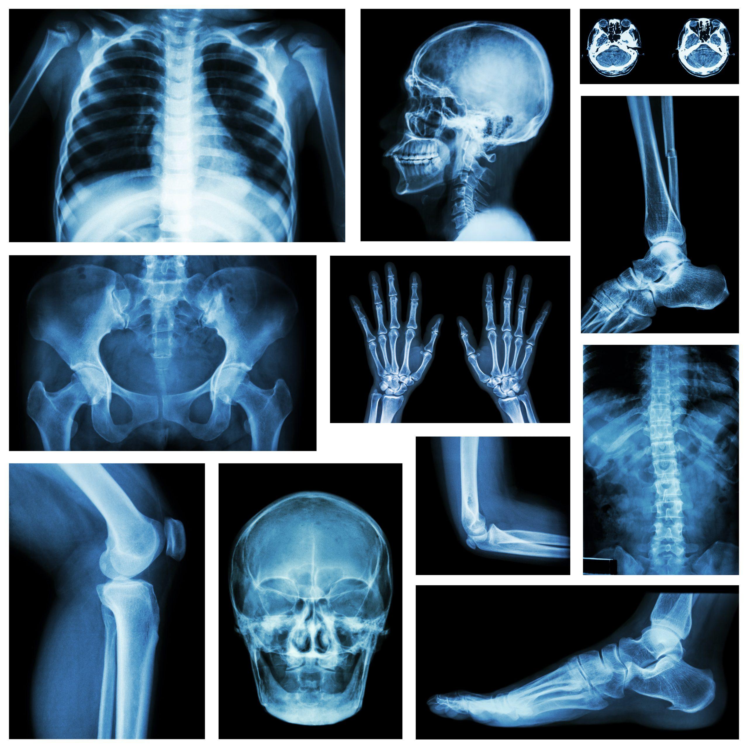 MSK Radiologie
